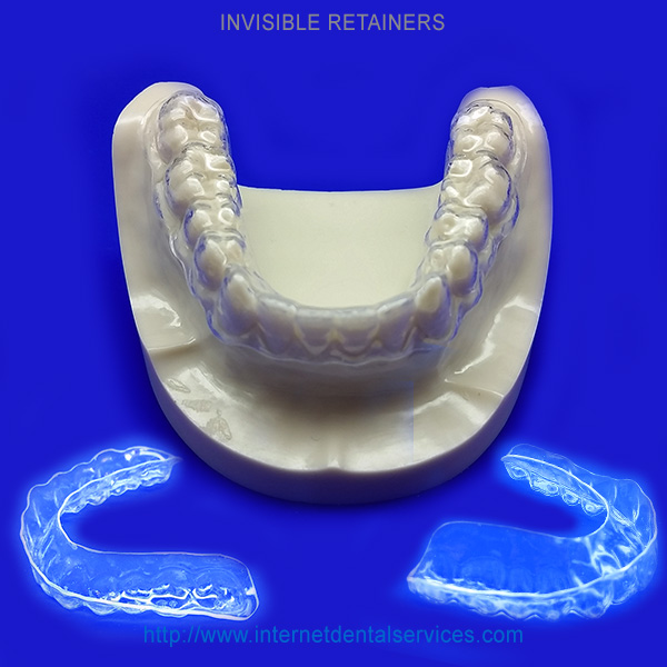 INVISIBLE RETAINERS