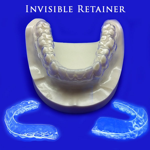 invisible-retainer (2)