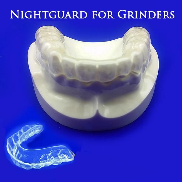 nightguard-grinders-1